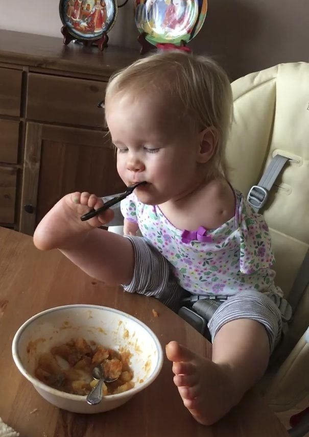 little-girl-not-know-word-limit-born-no-arms-learned-eat-feet-3